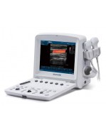 Edan U50 Color Doppler Portable Ultrasound System with Convex Probe