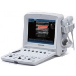 Edan U50 Color Doppler Portable Ultrasound System with Curved Linear Probe